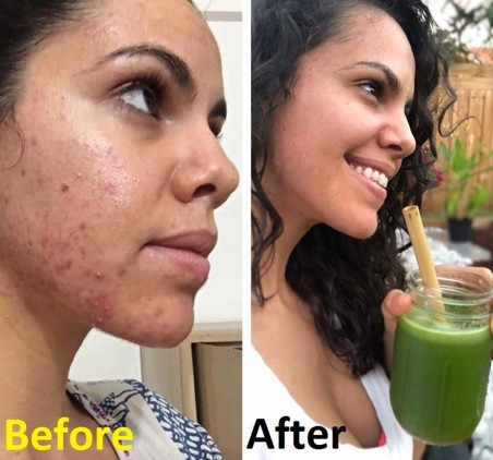 Acne Cure with celery juice. Effects after & before use